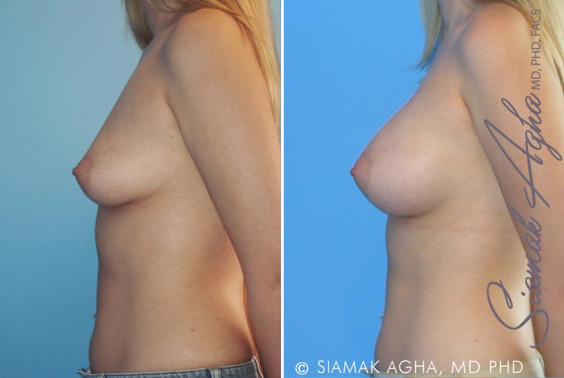 Orange County Newport Beach breast augmentation 18 Left View