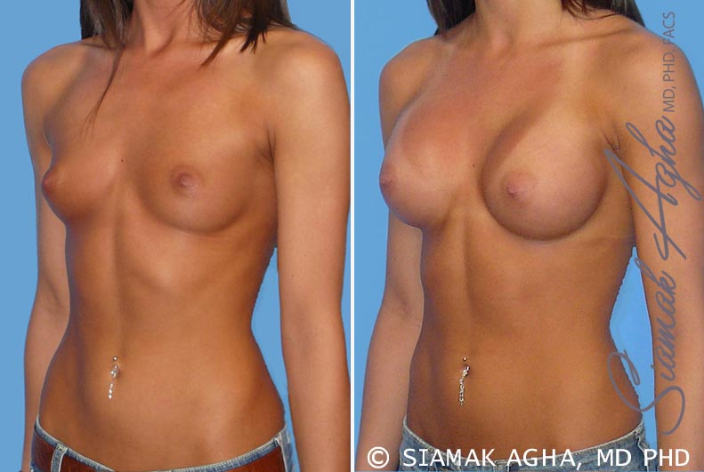 Orange County Newport Beach breast augmentation 19 Front Left View