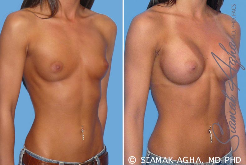 Orange County Newport Beach breast augmentation 19 Front Right View