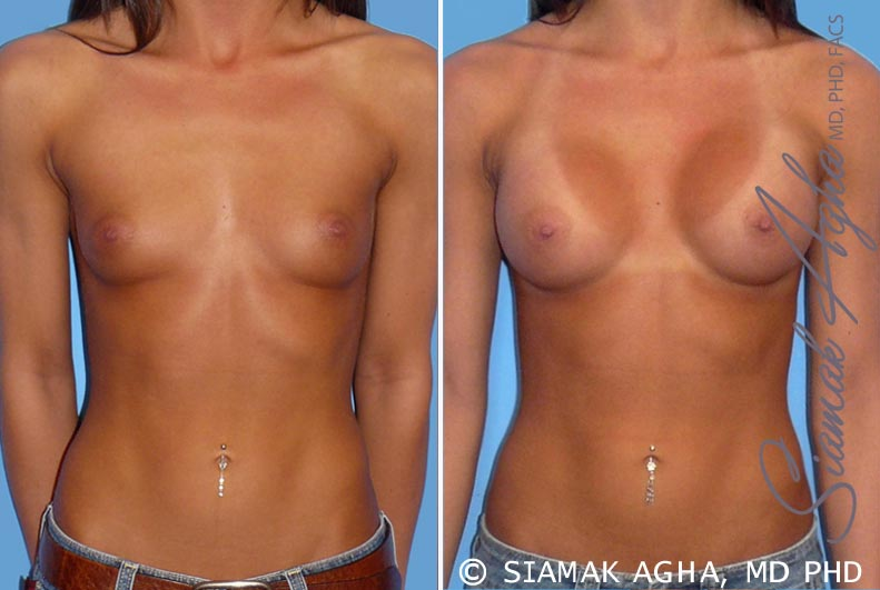 Orange County Newport Beach Breast Augmentation Patient 19