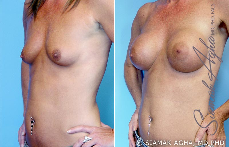 Orange County Newport Beach breast augmentation 2 Front Left View