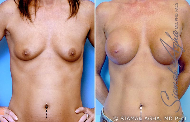 Orange County Newport Beach breast augmentation 2 Front View