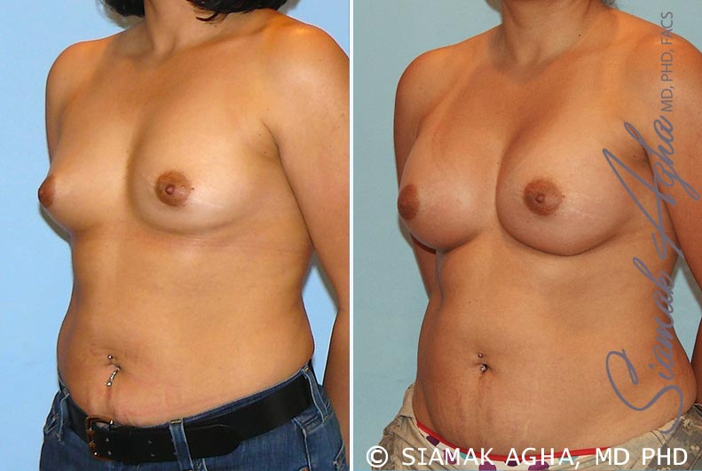 Orange County Newport Beach breast augmentation 20 Front Left View