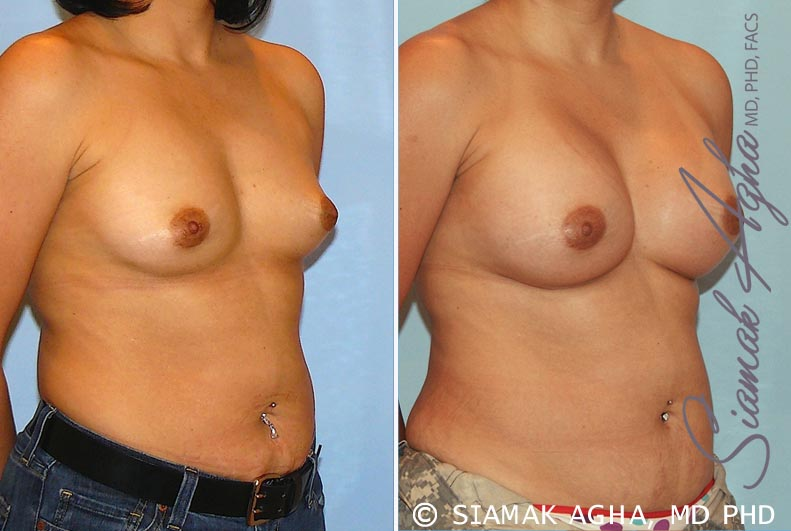 Orange County Newport Beach breast augmentation 20 Front Right View