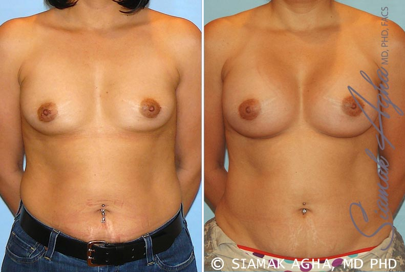 Orange County Newport Beach Breast Augmentation Patient 20