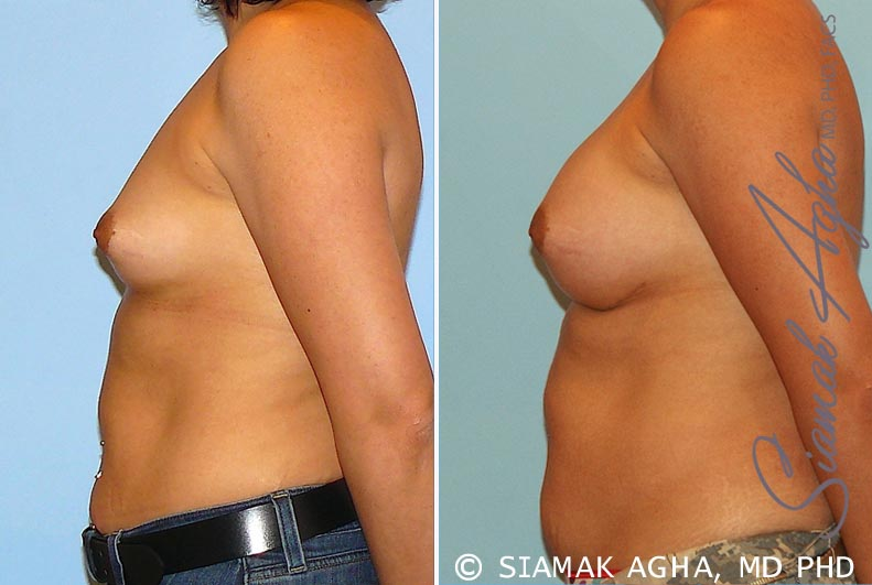 Orange County Newport Beach breast augmentation 20 Left View