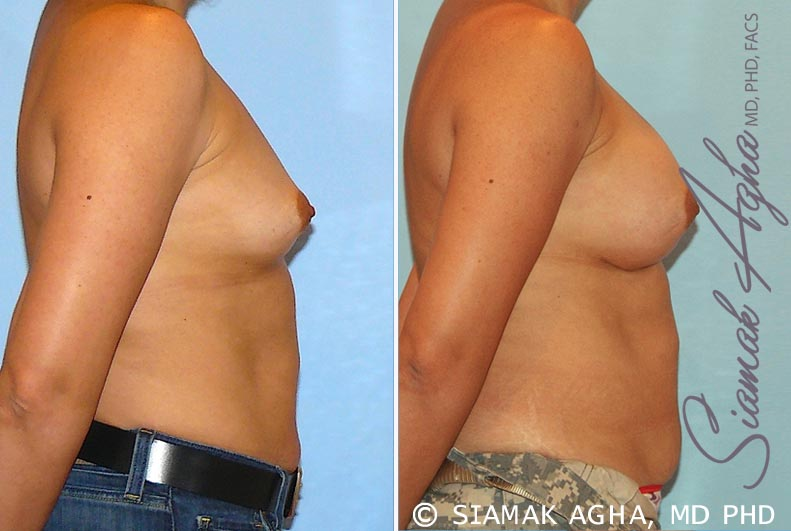 Orange County Newport Beach breast augmentation 20 Right View
