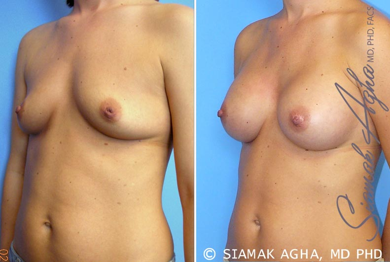 Orange County Newport Beach breast augmentation 21 Front Left View