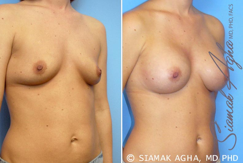 Orange County Newport Beach breast augmentation 21 Front Right View