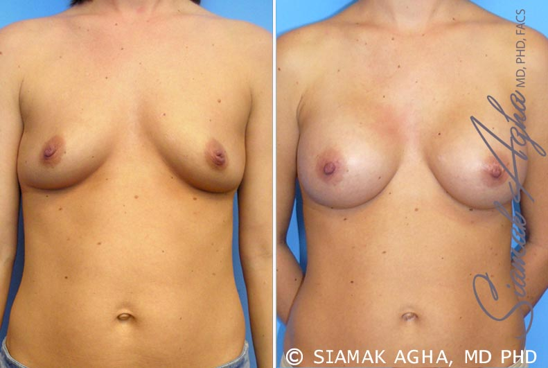 Orange County Newport Beach Breast Augmentation Patient 21