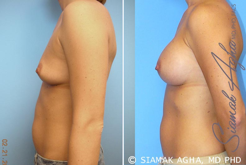 Orange County Newport Beach breast augmentation 21 Left View