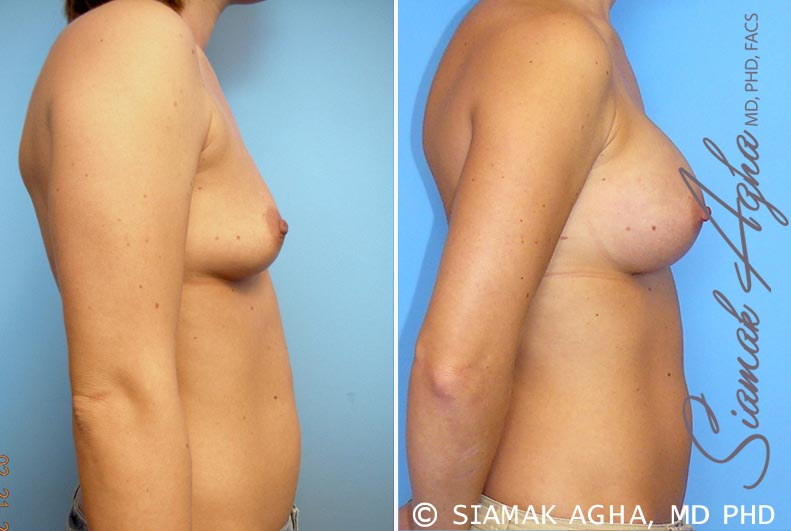 Orange County Newport Beach breast augmentation 21 Right View
