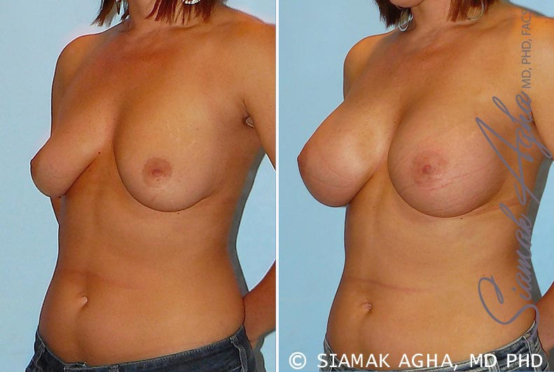 Orange County Newport Beach breast augmentation 22 Front Left View