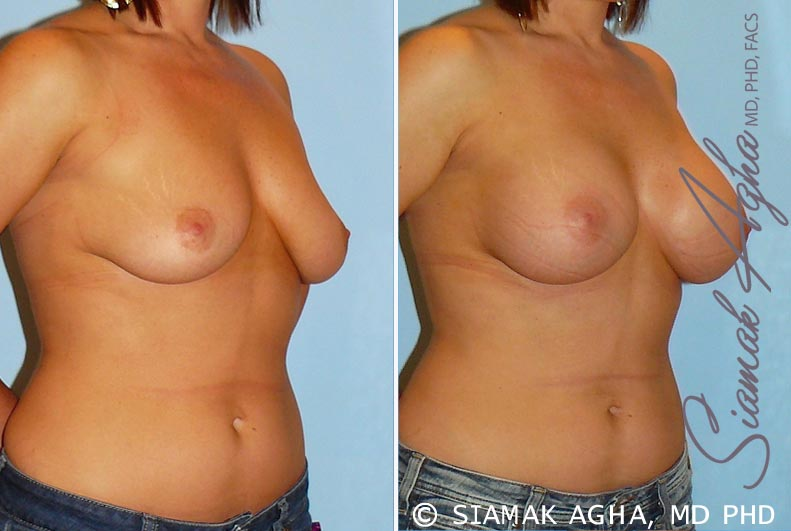 Orange County Newport Beach breast augmentation 22 Front Right View