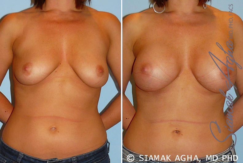 Orange County Newport Beach Breast Augmentation Patient 22