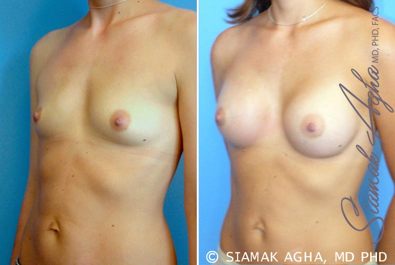 Orange County Newport Beach breast augmentation 23 Front Left View