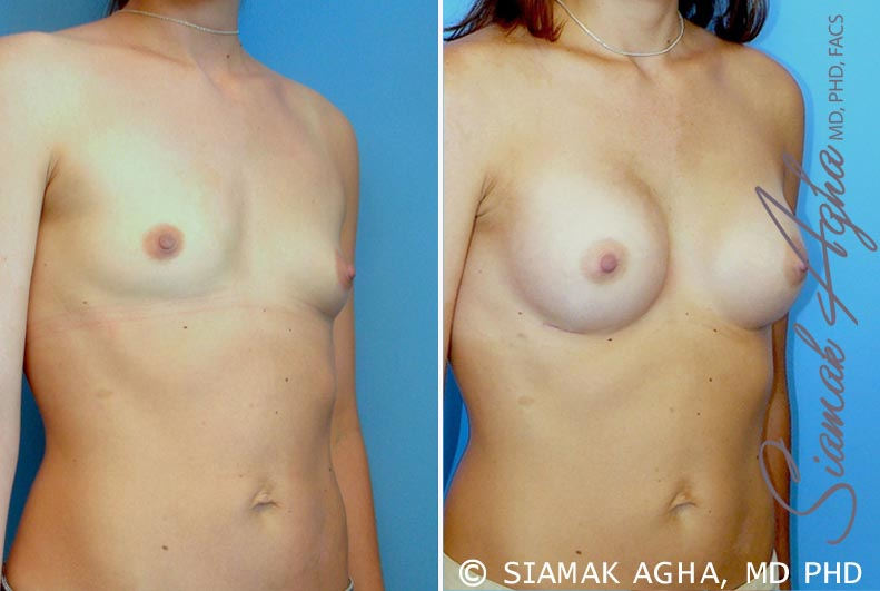 Orange County Newport Beach breast augmentation 23 Front Right View