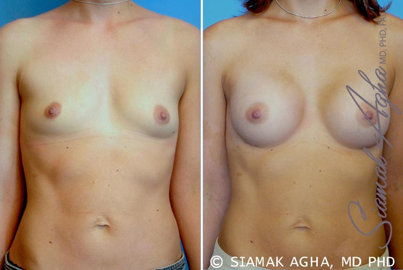 Orange County Newport Beach Breast Augmentation Patient 23