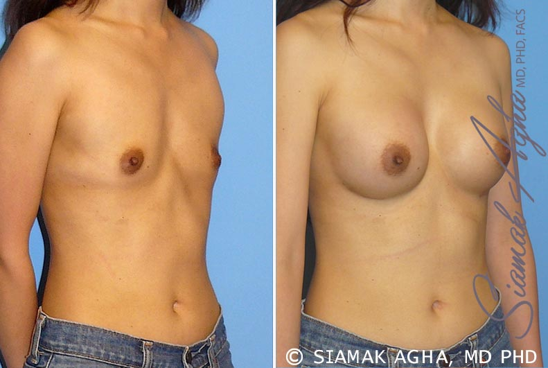Orange County Newport Beach breast augmentation 24 Front Right View