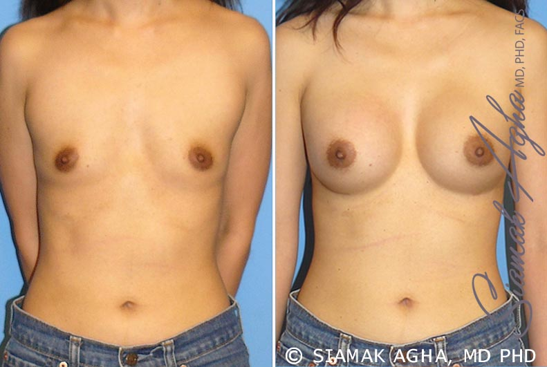 Orange County Newport Beach Breast Augmentation Patient 24