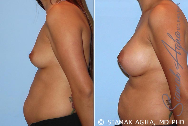 Orange County Newport Beach breast augmentation 26 Left View