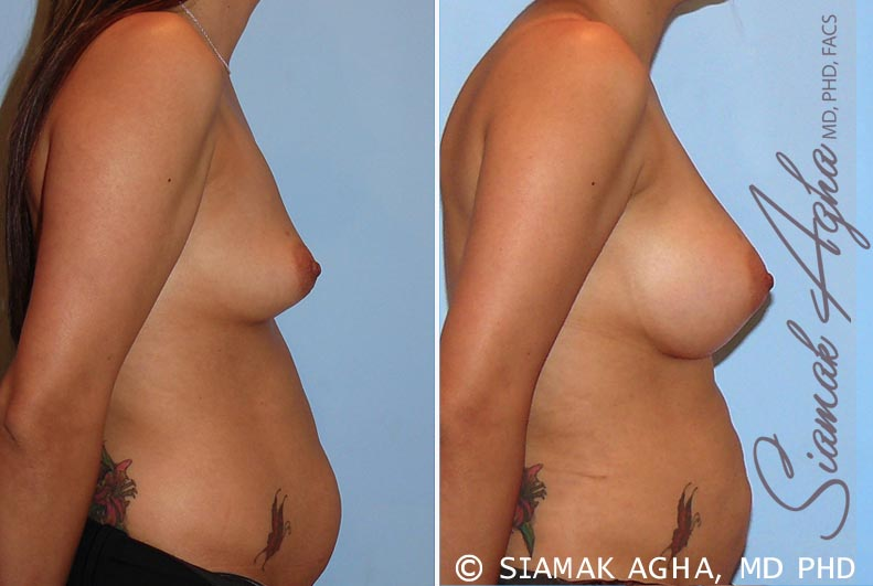 Orange County Newport Beach breast augmentation 26 Right View