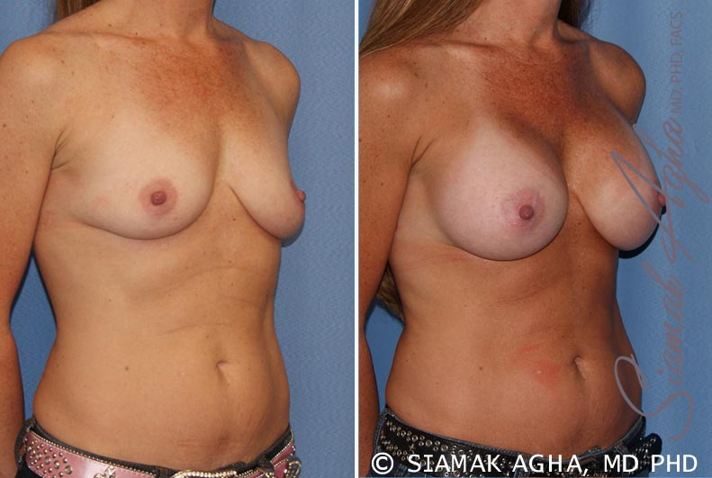 Orange County Newport Beach breast augmentation 27 Front Right View