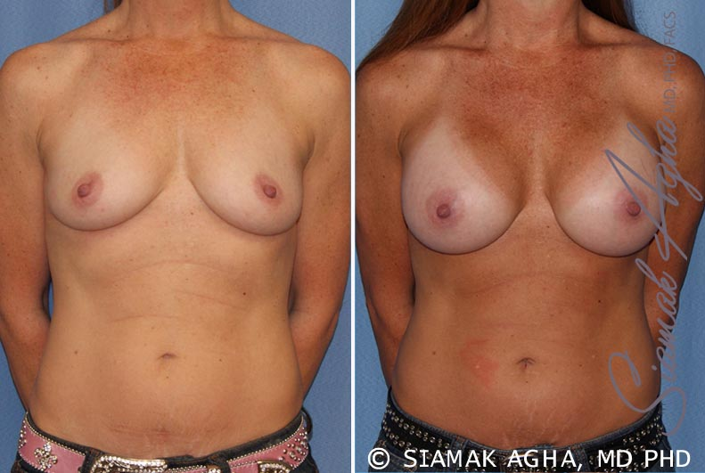 Orange County Newport Beach breast augmentation 27 Front View