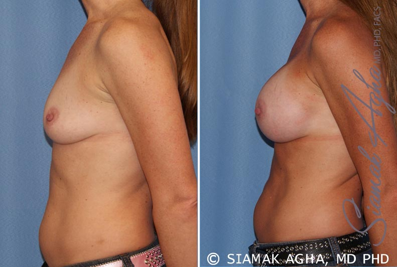 Orange County Newport Beach breast augmentation 27 Left View