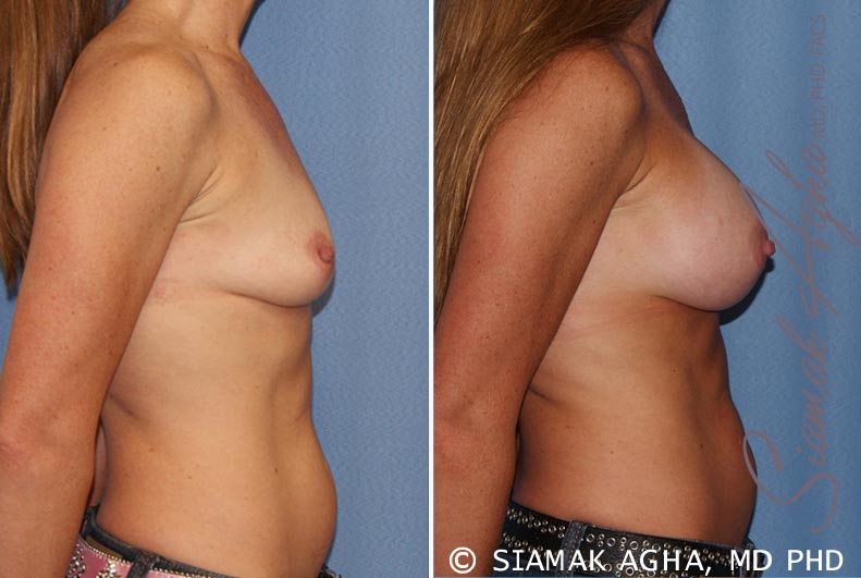Orange County Newport Beach breast augmentation 27 Right View