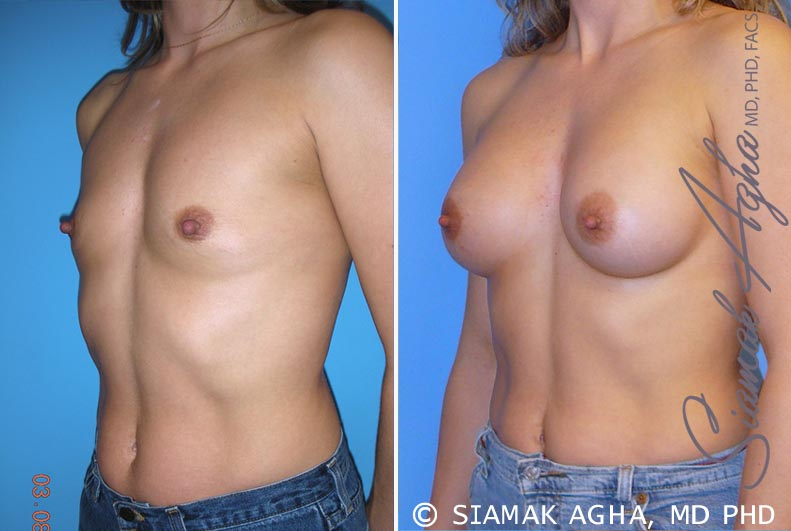 Orange County Newport Beach breast augmentation 28 Front Left View
