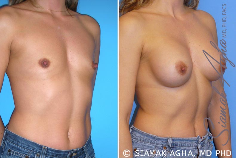Orange County Newport Beach breast augmentation 28 Front Right View