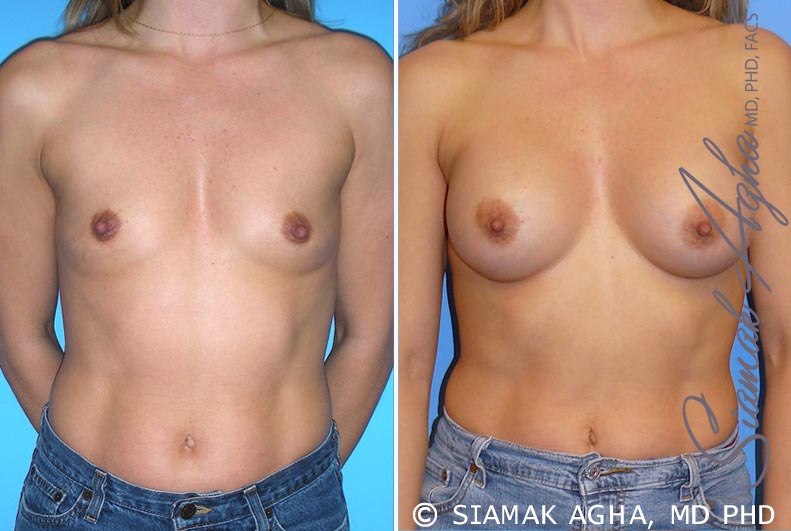 Orange County Newport Beach breast augmentation 28 Front View