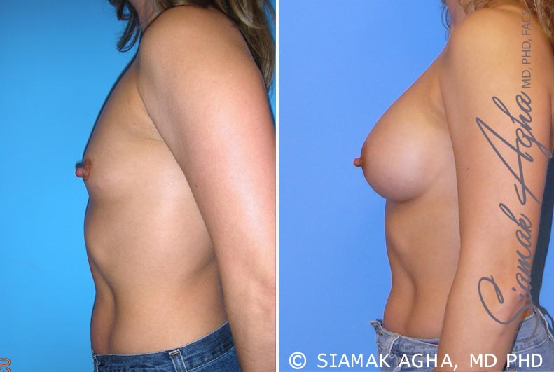 Orange County Newport Beach breast augmentation 28 Left View