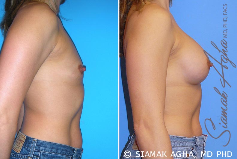 Orange County Newport Beach breast augmentation 28 Right View