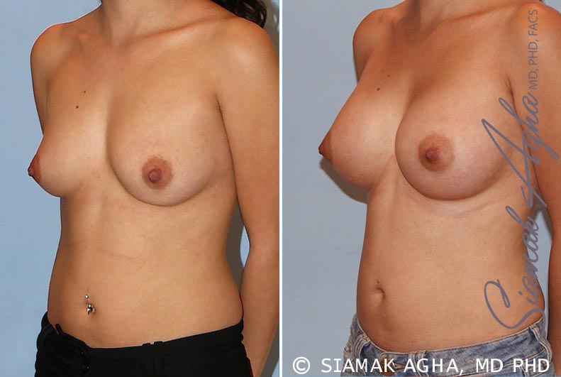 Orange County Newport Beach breast augmentation 29 Front Left View