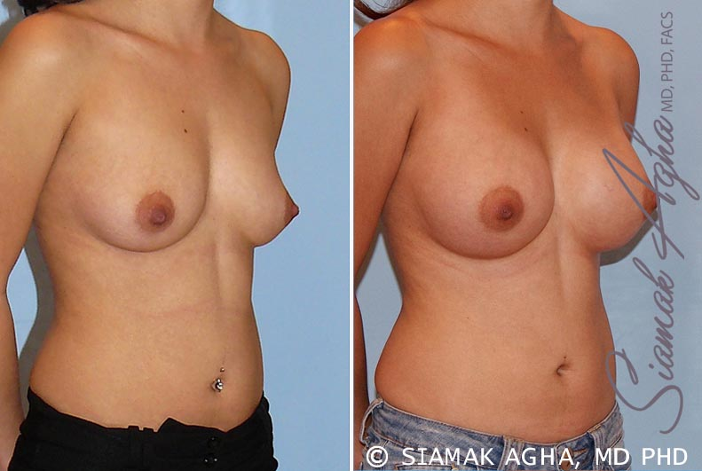 Orange County Newport Beach breast augmentation 29 Front Right View