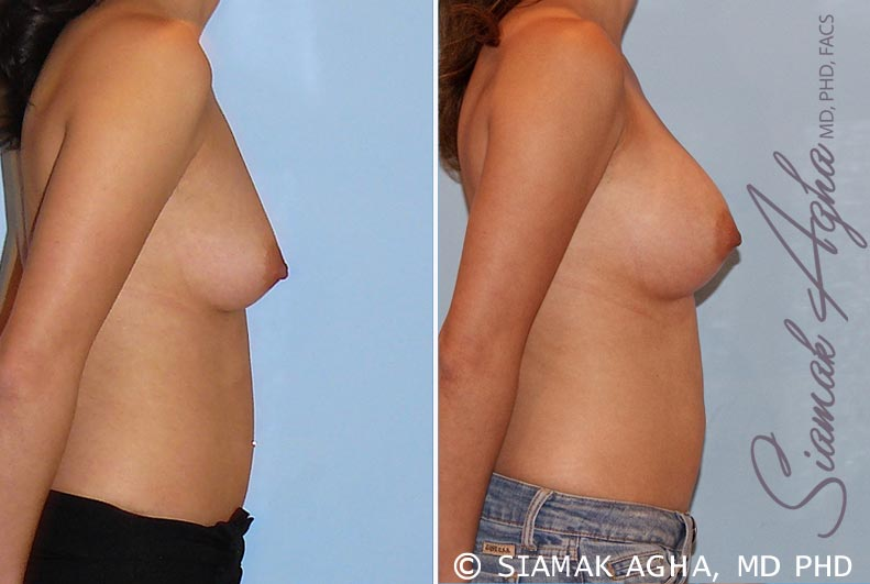 Orange County Newport Beach breast augmentation 29 Right View
