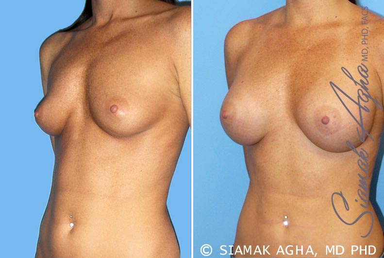 Orange County Newport Beach breast augmentation 30 Front Left View