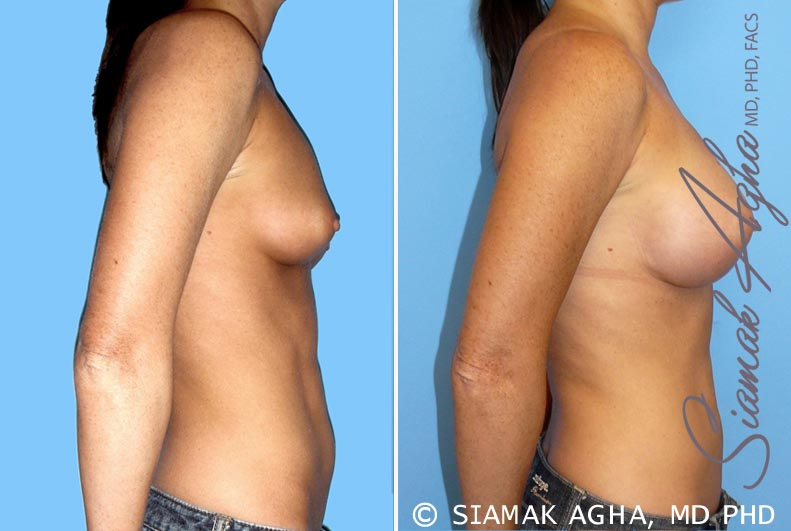 Orange County Newport Beach breast augmentation 30 Right View