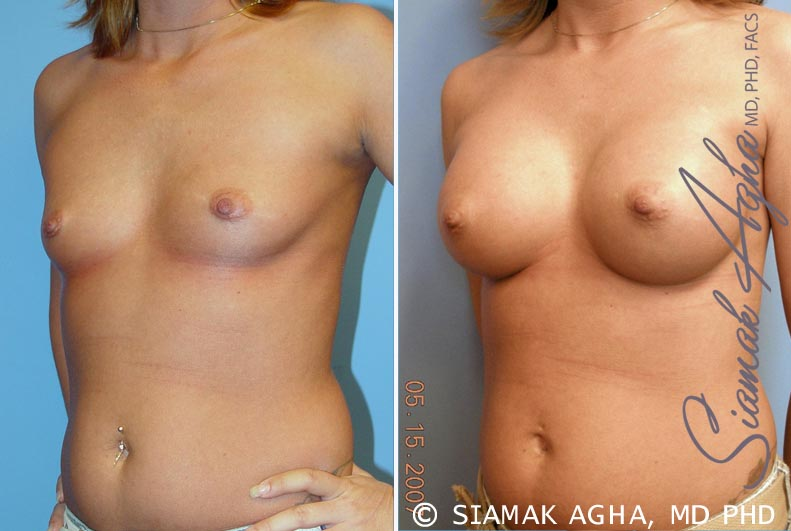 Orange County Newport Beach breast augmentation 31 Front Left View