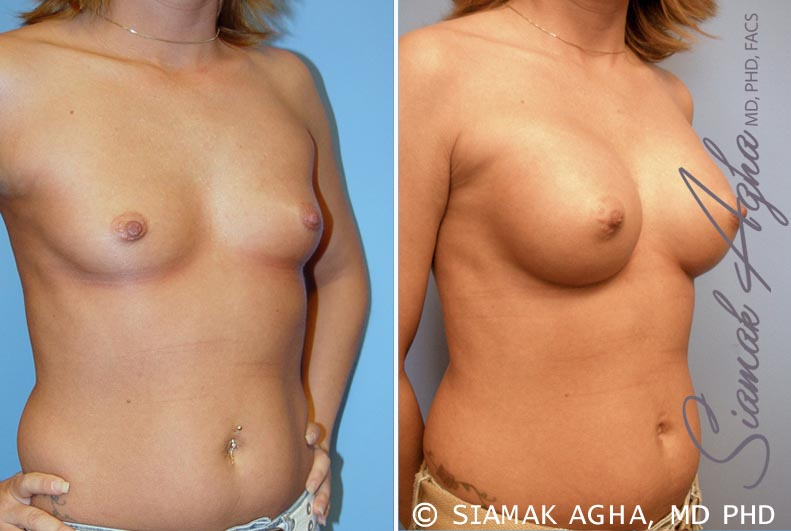 Orange County Newport Beach breast augmentation 31 Front Right View