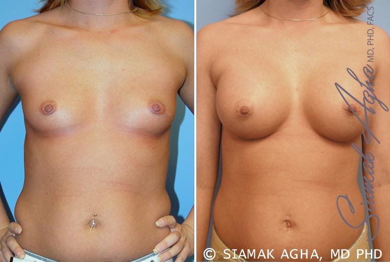 Orange County Newport Beach breast augmentation 31 Front View