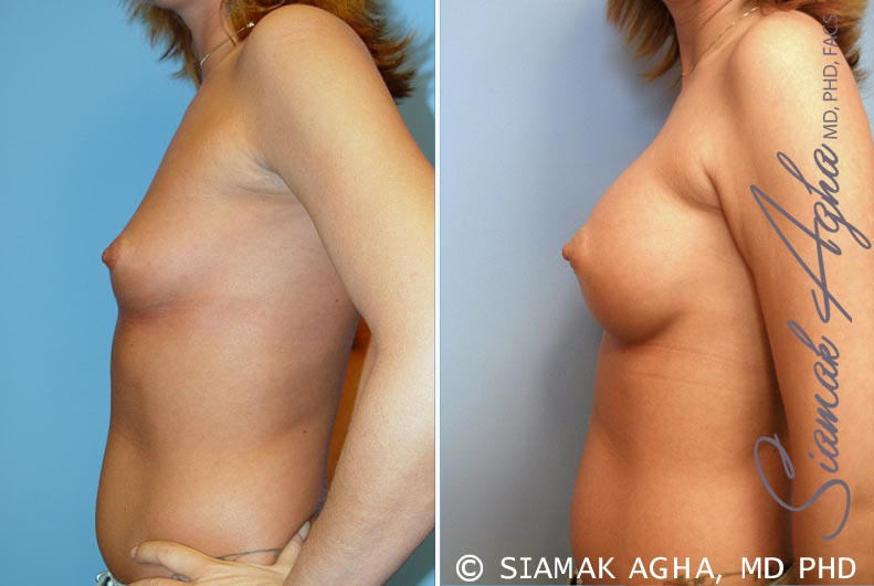 Orange County Newport Beach breast augmentation 31 Left View