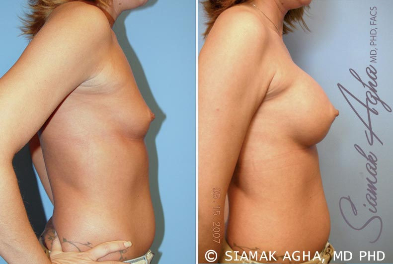 Orange County Newport Beach breast augmentation 31 Right View