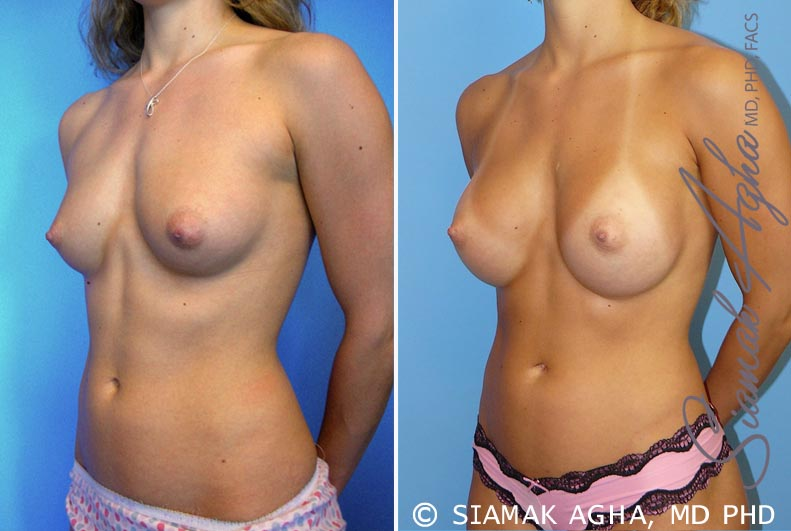 Orange County Newport Beach breast augmentation 32 Front Left View
