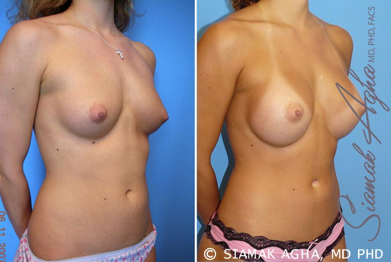 Orange County Newport Beach breast augmentation 32 Front Right View