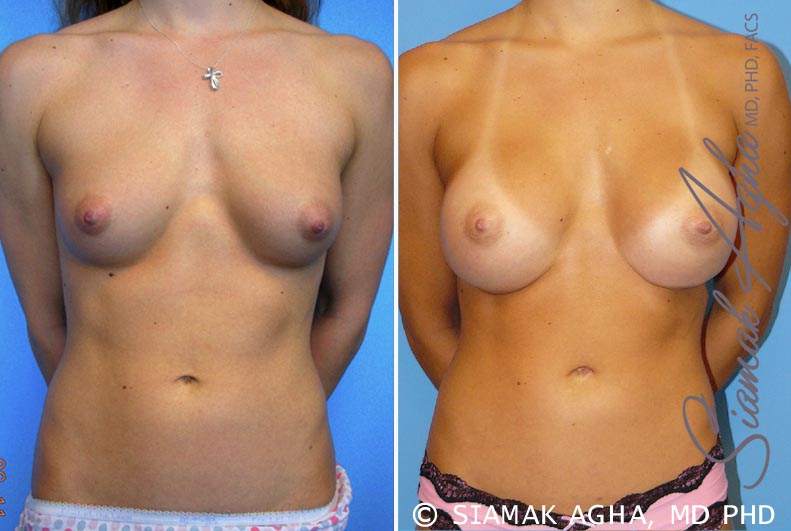 Orange County Newport Beach Breast Augmentation Patient 32