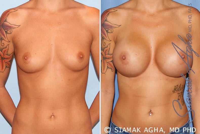 Orange County Newport Beach Breast Augmentation Patient 33