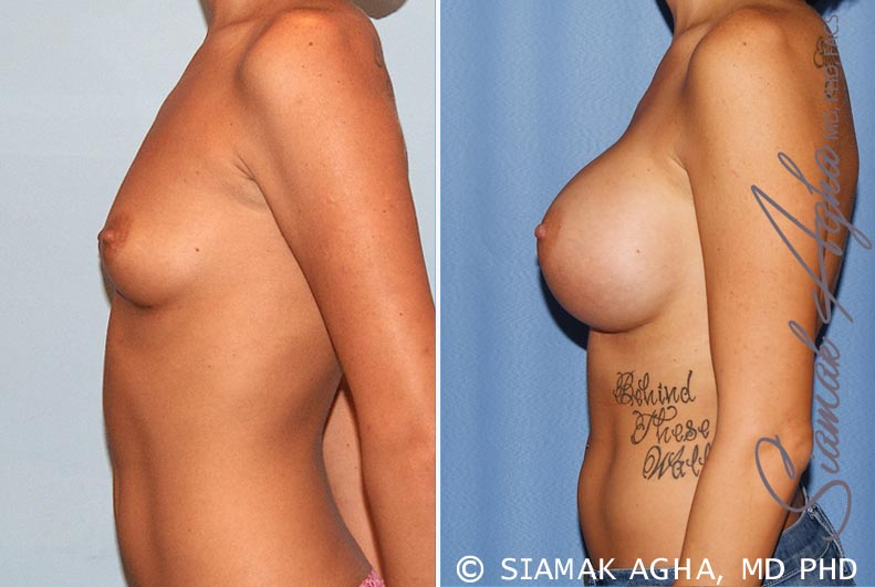 Orange County Newport Beach breast augmentation 33 Left View